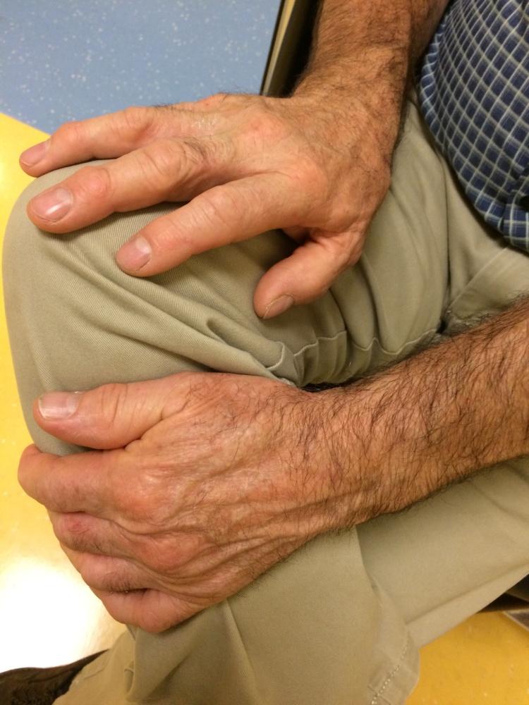 Jim's Hands